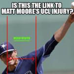 matt-moore-ucl-injury 1
